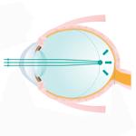 近視抑制(低濃度アトロピン点眼)