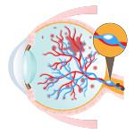 網膜静脈分岐閉塞症