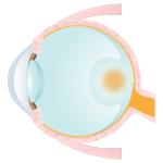 網膜上膜(黄斑上膜)
